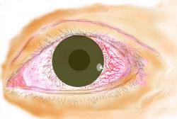 充血 真っ赤 の 目 左目の白目の半分がまっ赤(血の色)になりました