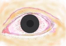 コンタクトレンズによる角膜障害
